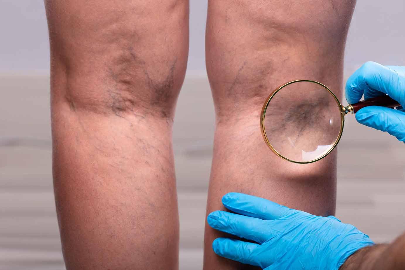 Tratamiento Arañas vasculares